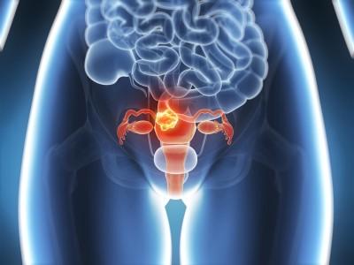 3d rendered illustration - uterus cancer