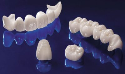 celnokeravicheskie-zubnie-protezi